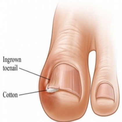 Ingrown-Toenails