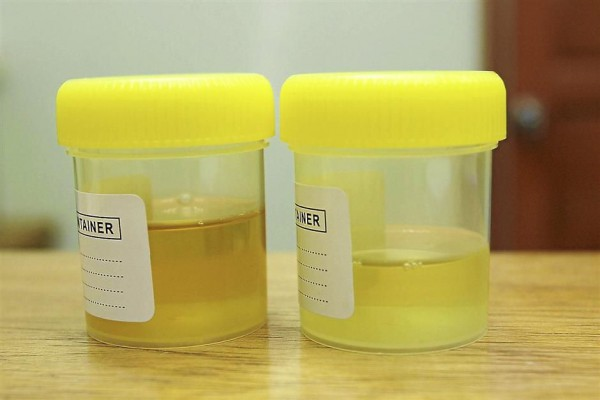 7 Colors Of The Urine That Can Bring Up Important Health