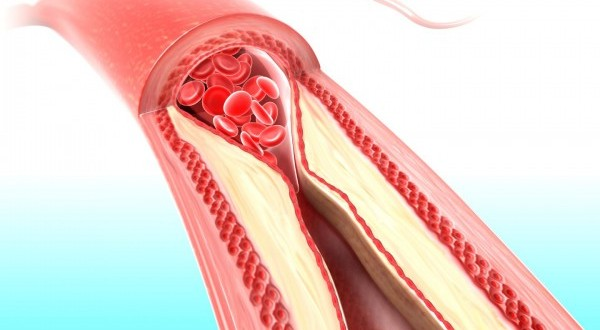 how to keep arteries clear and healthy