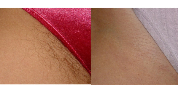 Remove unwanted hair forever  Initially, the hair will start