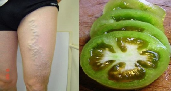 Treatment of varicose veins with green tomatoes