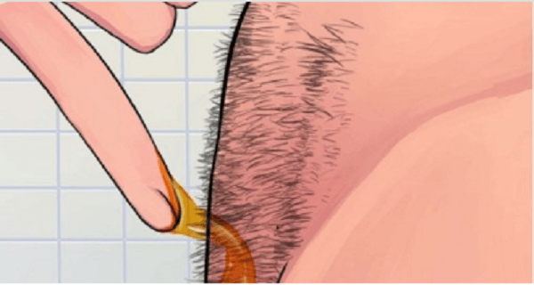 Remove-Body-Hair-Permanently
