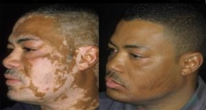 Doctors-Cure-For-Vitiligo