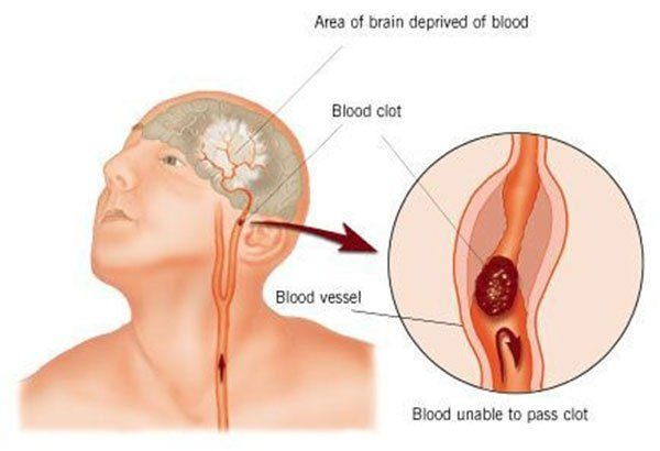 Important To Know: How To Recognize A Stroke And Help In Time