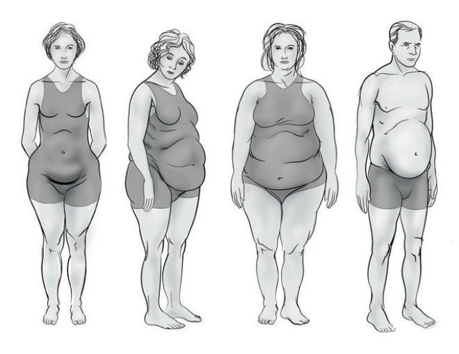 What Is Your Hormonal Intolerance: Determine The Type Of Your Figure – There Are 4 Types